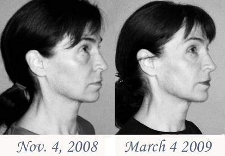 Flex effect facial exercises