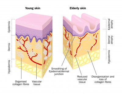 Young and Elderly Skin