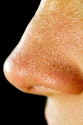 large pores on nose - photo #38