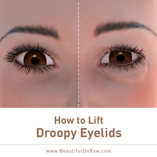 Droopy Eyelids Solutions